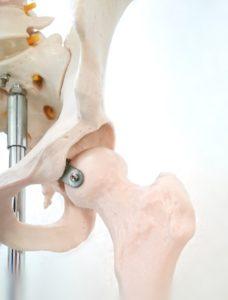 骨格標本の股関節部分の写真