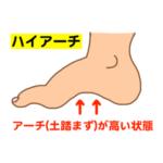足首や足裏が痛い!あなたの足、ハイアーチになっているかも