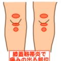 ひざの痛み「膝蓋靭帯炎(しつがいじんたいえん)」について